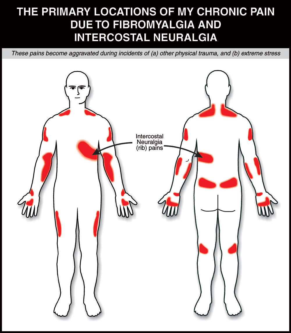 Referred Pain Locations